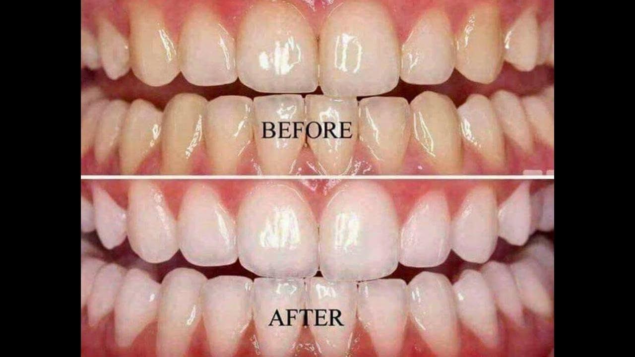 לפני אחרי משחת שיניים מלבינה AP24